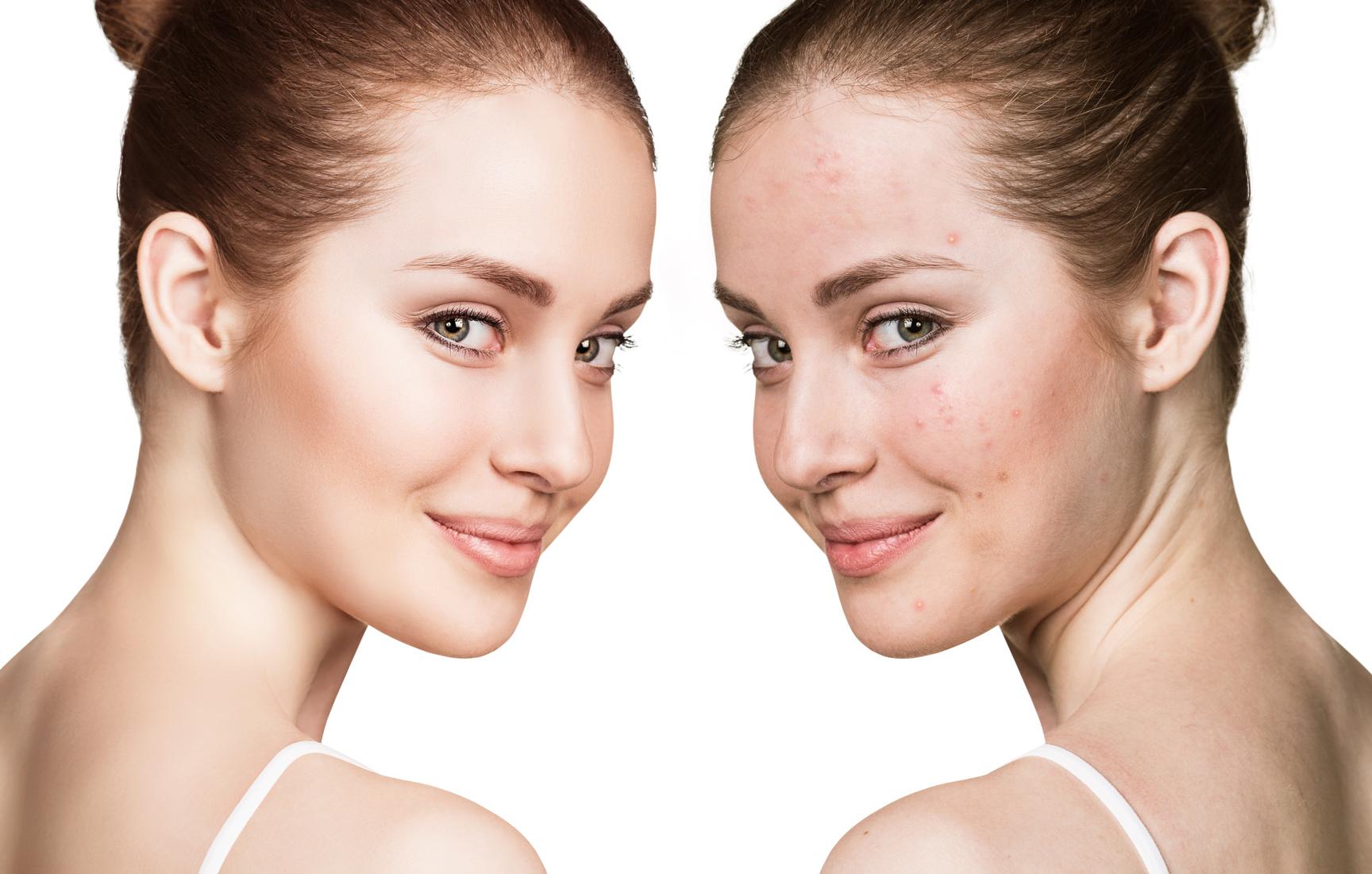 Rechts das Originalfoto eines Gesichts mit Hautunreinheiten, links dasselbe Gesicht mit makelloser Haut
