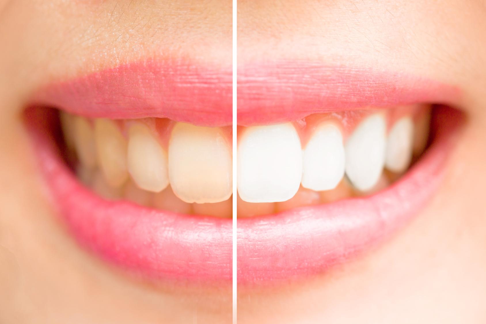 Lächelnder Mund mit Zahnreihe im Vorher-Nachher-Vergleich.